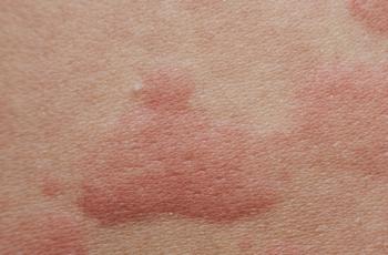 Como a microbiota da pele pode ajudar a tratar desordens cutâneas